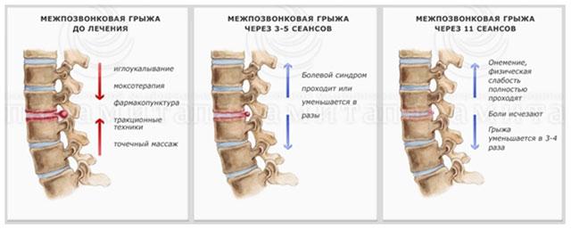 Видео упражнение для шеи остеохондроз